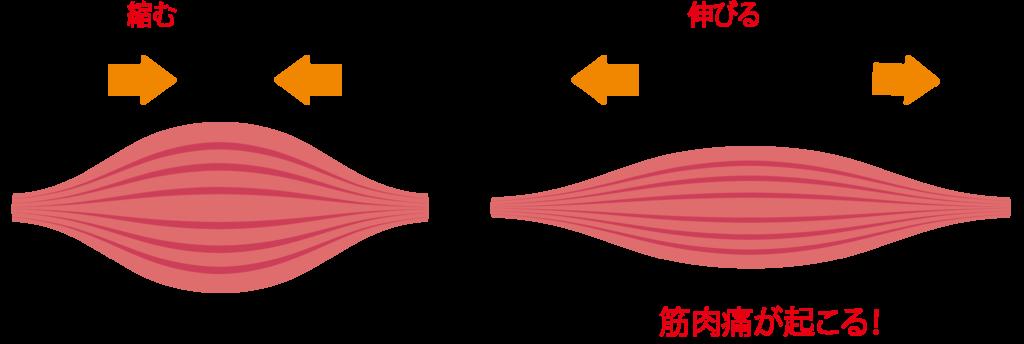 筋肉痛が起こる仕組み