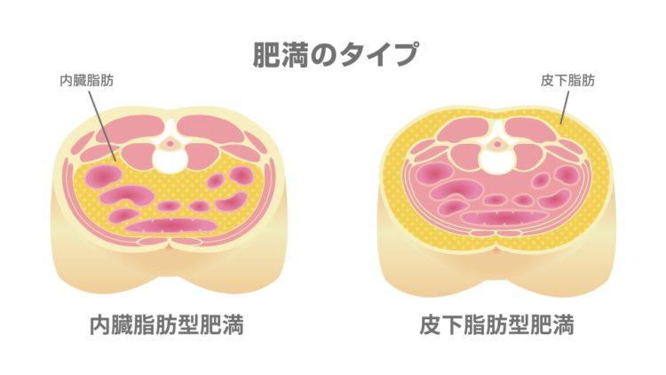 内臓脂肪の画像